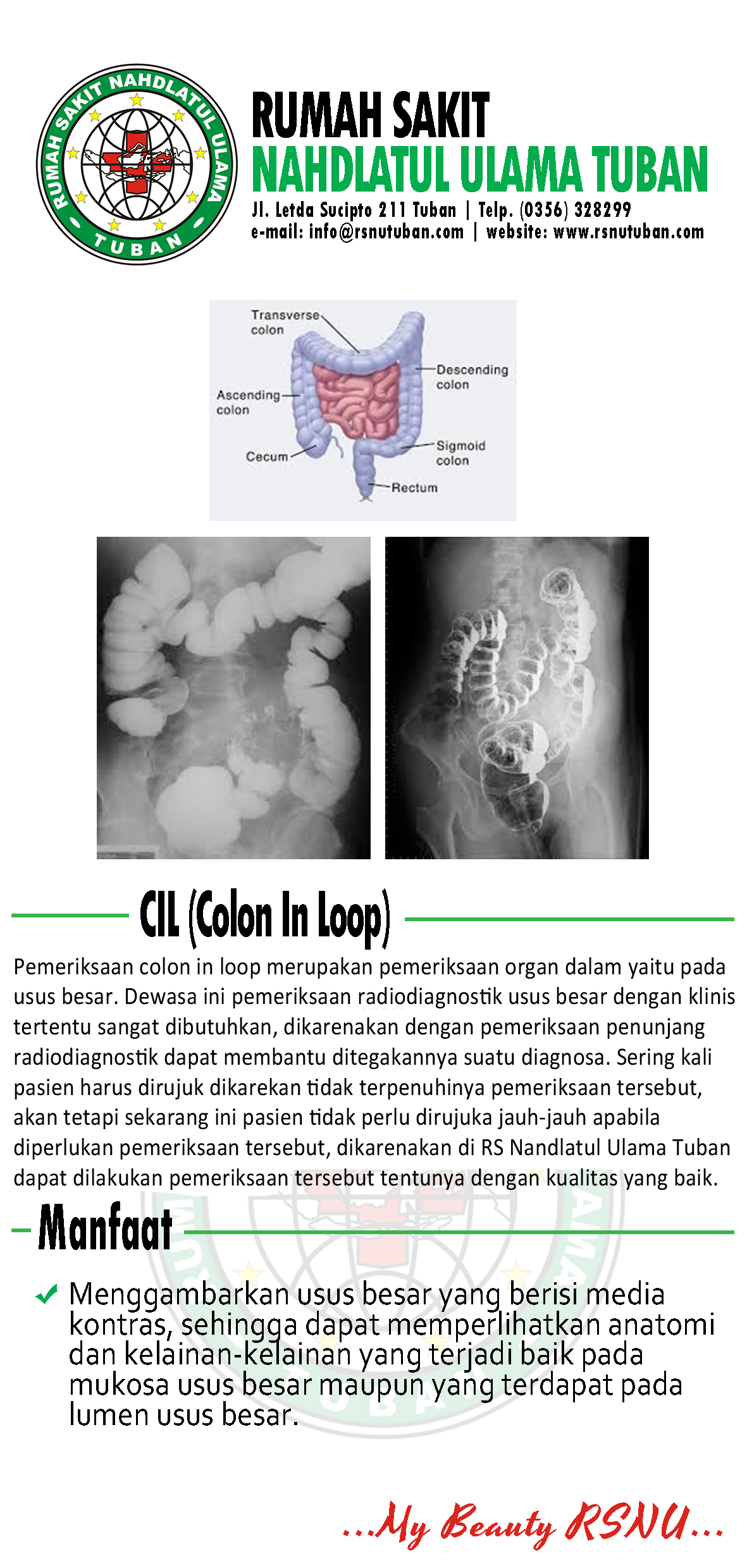 Brosur Colon In Loop - RSNU Tuban